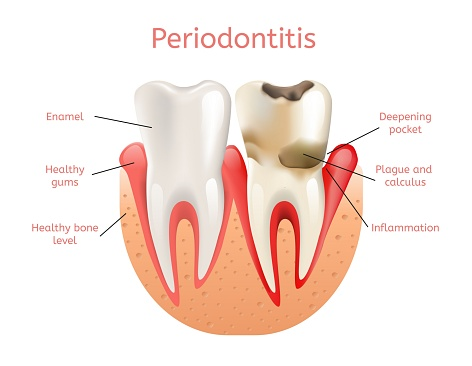 Illustration of a tooth with periodontal disease, in need of scaling and root planing, at dentist office in Livermore, CA.