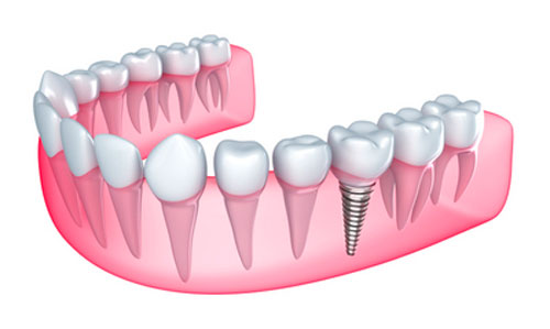 Benefits of Getting Dental Implants Placed