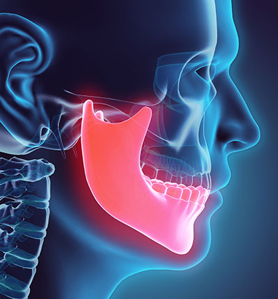 Orthognathic Surgery at Pacific Oral & Facial Surgery Center, Livermore, CA