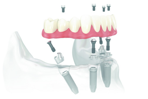 Does Your Jaw Stay Healthy from All on 4 Implants?
